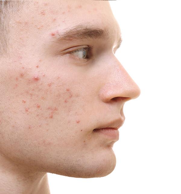 Before-Akne Tedavisi
